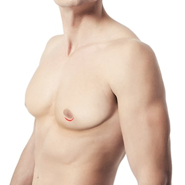 男性缩胸-半乳晕切口法