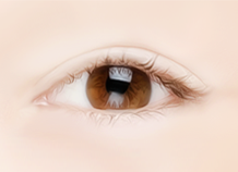 步骤s for Non-incision Double Eyelid Surgery Method