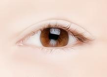 下眼睑手术步骤