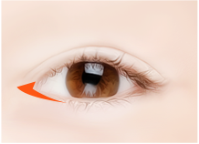 神奇眼角整形手术步骤