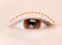 切口上睑下垂矫正手术步骤