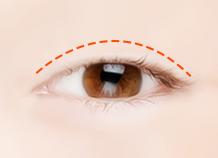 非切口上睑下垂矫正手术步骤