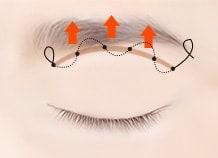 分眉提升术手术方法
