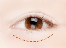 下眼睑形成术手术方法