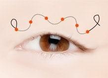 上眼睑形成术手术方法