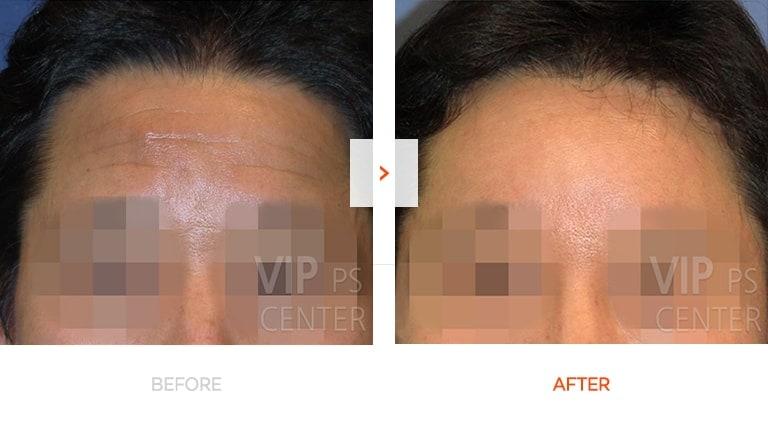 内窥镜额头和眉毛拉皮手术前后对比