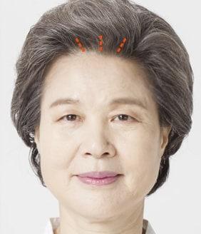 内窥镜额头和眉毛拉皮手术方法