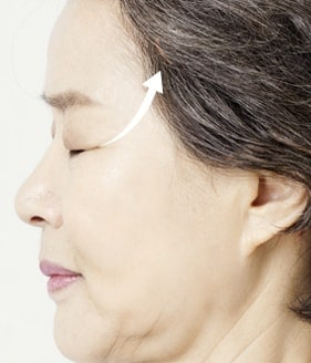 MINIMUM INCISION FACELIFT SURGERY METHOD