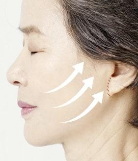 High smas facelift surgery method