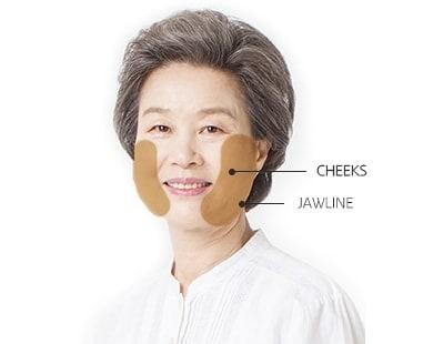 Minimum Incision Facelift surgery area