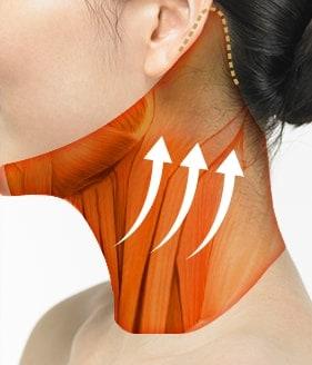 颈部拉皮手术方法