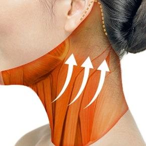 非手术类颈部拉皮程序