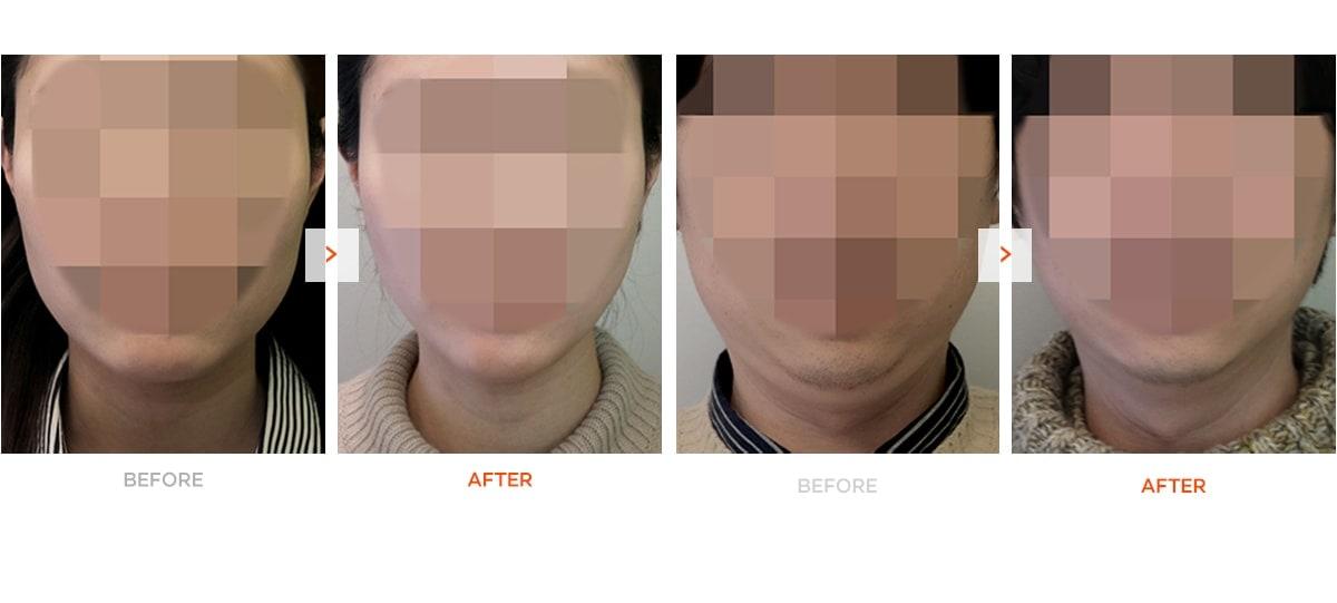 非手术V型脸前后对比