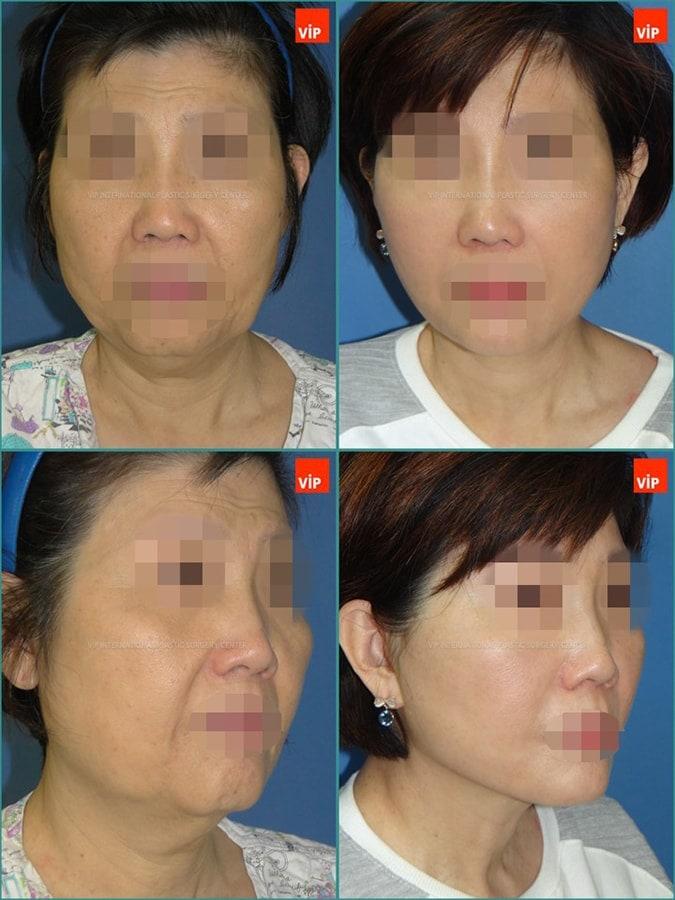 抗衰老手术案例
