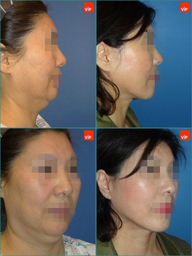 抗衰老手术-颈部拉皮,颈部拉皮