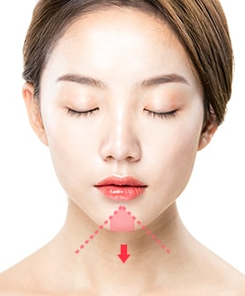 Chin Surgery Method - T-Cut Chin Surgery – Step 1