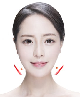 Jaw Reduction Surgery Method – Step 5