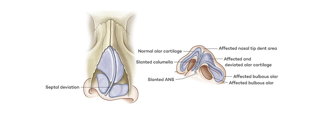 畸形鼻的七大主要症状