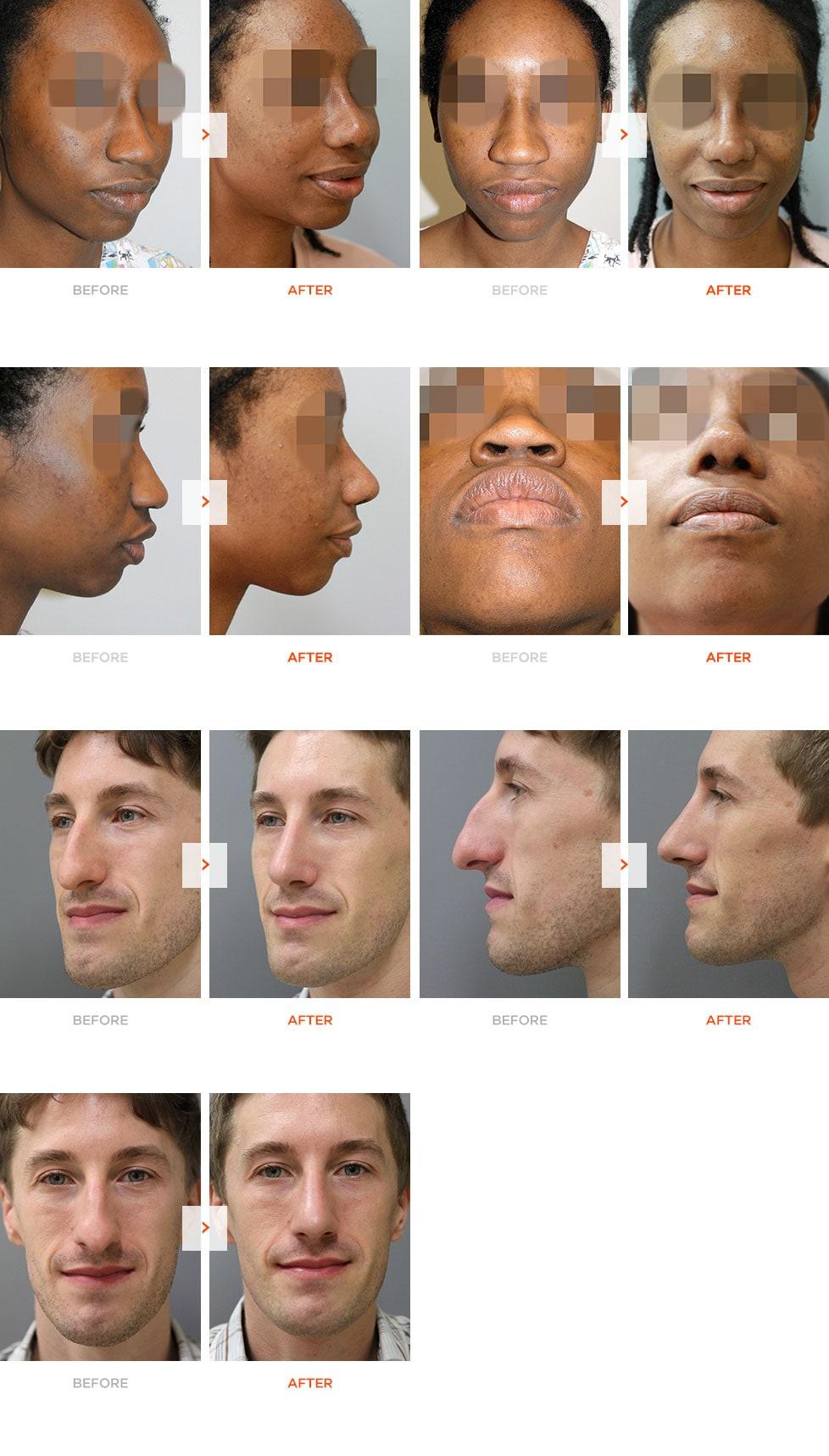 民族化鼻部整形术前术后对比
