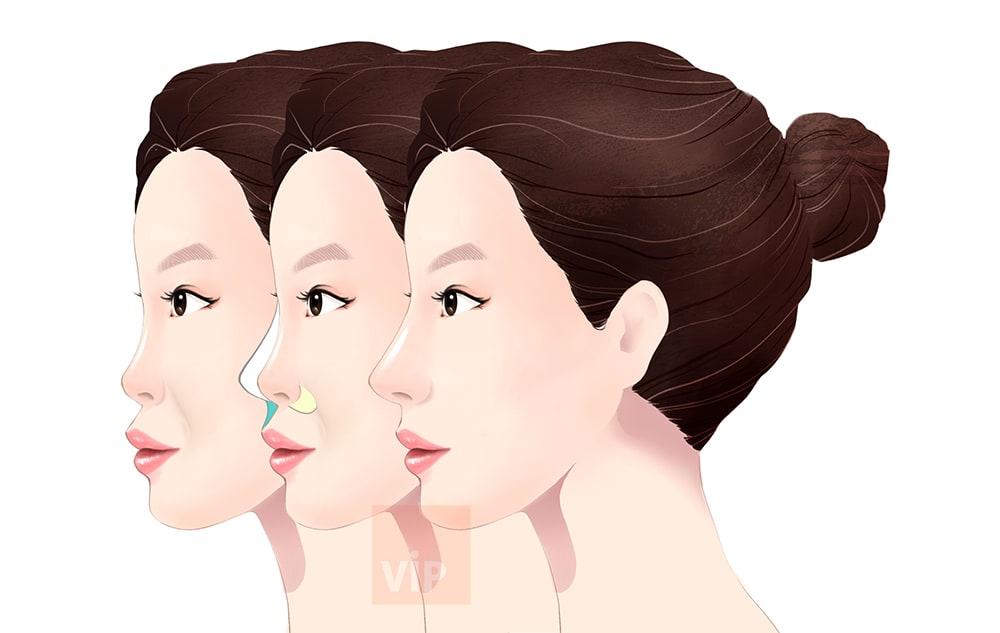 脸部中央提升手术