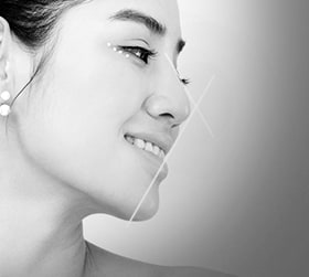 Harmonization of nose tip and chin