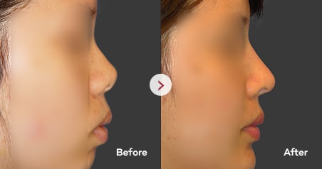 Short Nose before and after