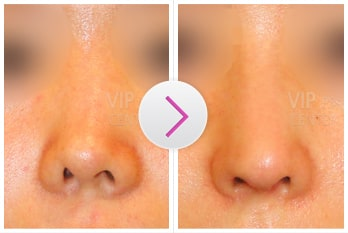 Revision Rhinoplasty Before and After(Deviation)
