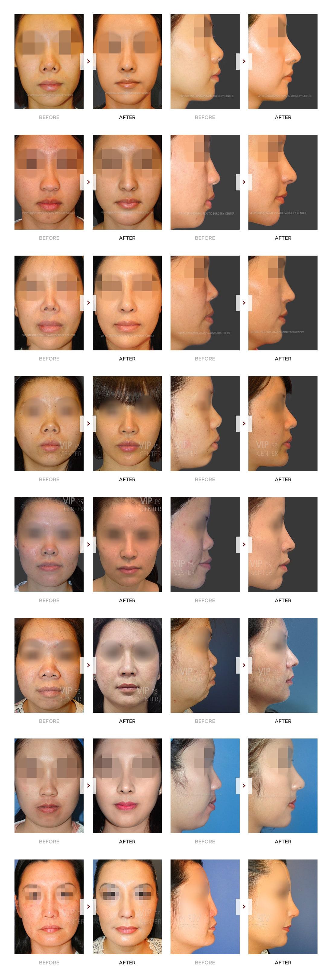 肋软骨隆鼻术前术后对比照