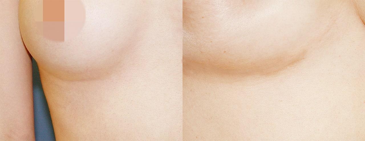 VIP整形外科的肋软骨隆鼻手术采用特殊的技术,使得切口最小化至2-3厘米